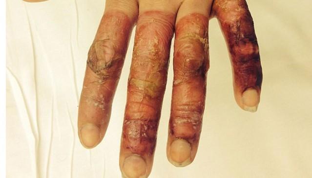 Uyandığında Parmaklarını Gördü Şok Yaşadı galerisi resim 1