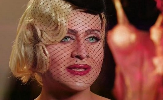 Madonna'ya Benzemek İçin 16 Ameliyat Geçirdi Ama galerisi resim 1