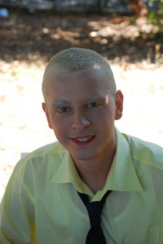 Onu Hepimiz Albino Hastası Bir Genç Zannettik Ama... galerisi resim 1