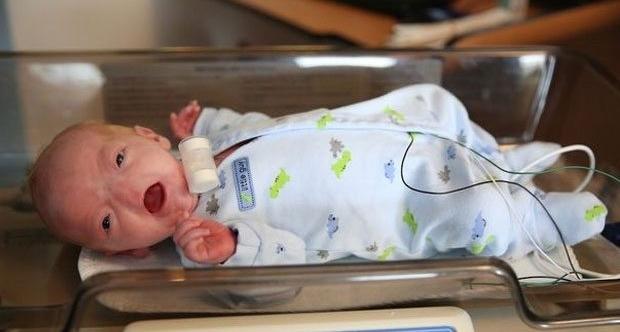 Burunsuz Doğan Bebeğin Binlerce Facebook Takipçisi Var galerisi resim 1