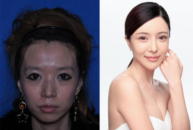 Plastik Cerrahi Sonrası Çinli Kızların Değişimi galerisi resim 1