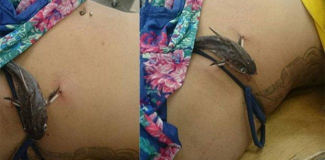 Bacağına Saplanan Balığı Hastanede Ameliyatla Çıkardılar