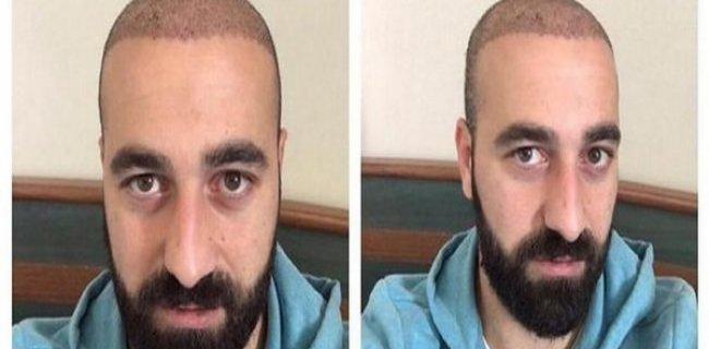 Habersiz Saç Ektirince Takımdan Kovuldu