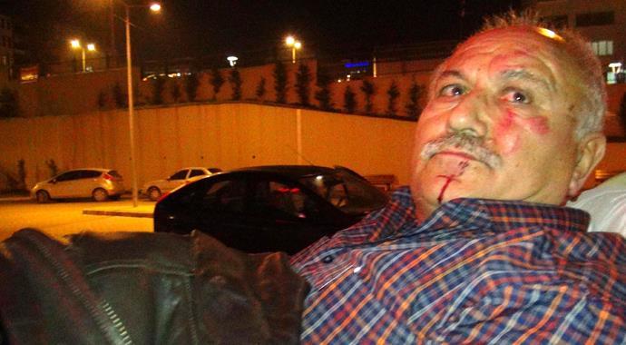 Karabük'te Bir Kız Babasını Hastanelik Etti !