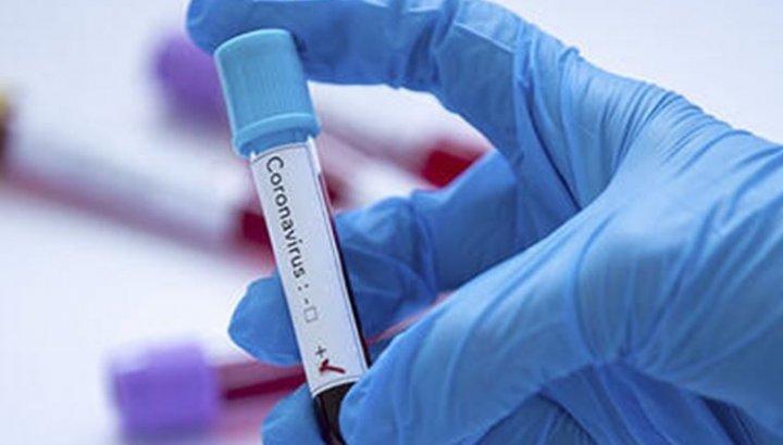 Türkiye, koronavirüs vaka sayısı sıralamasında dünyada 6. sıraya yükseldi