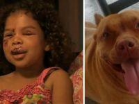 Komşunun Labradoru Küçük Kıza Saldırdı - Kızın Yardımına Bir Pitbull Koştu